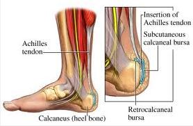 Achilles Tendon Pain and Leg Pain Relief