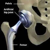 Artificial Hips and Hip Pain Relief