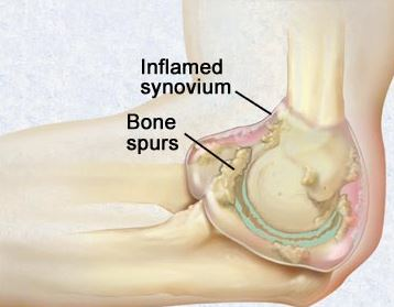 Heel Bone Spurs and Heel Pain Relief
