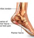 Plantar Fasciitis and Heel Pain Relief