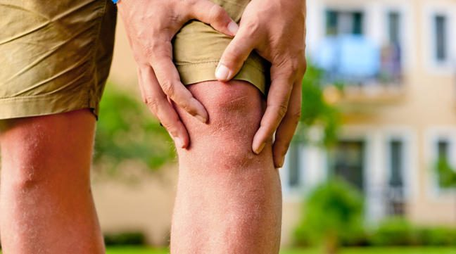 648x361_Natural-relief-arthritis-pain