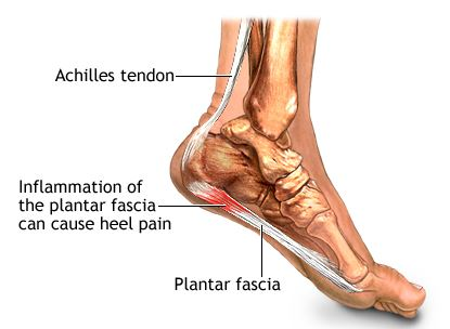 Plantar Fasciitis and Heel Pain Relief