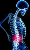 Spinal Misalignment and Acute Pain Management